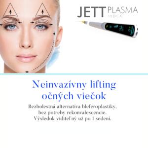 PlasmaJett lifting - Neinvazívny lifting očných viečok
