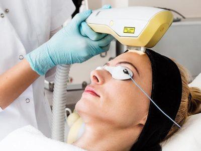 IPL EXILITE - Odstránenie pigmentácii a žiliek