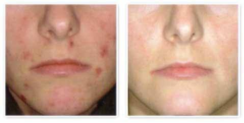 IPL EXILITE - liečba akné